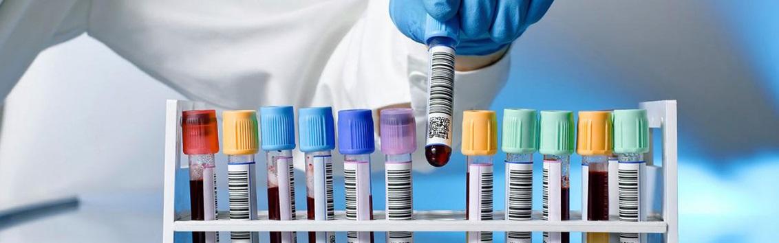 Анализы на инфекции, передающиеся половым путем