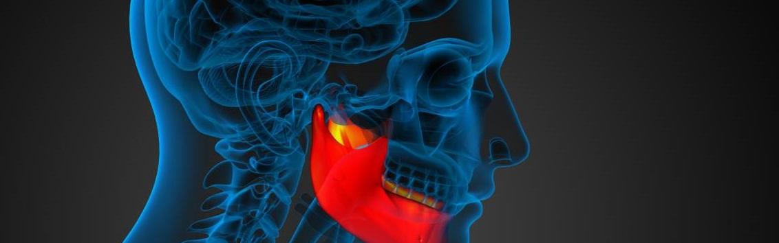 МРТ височно-нижнечелюстного сустава