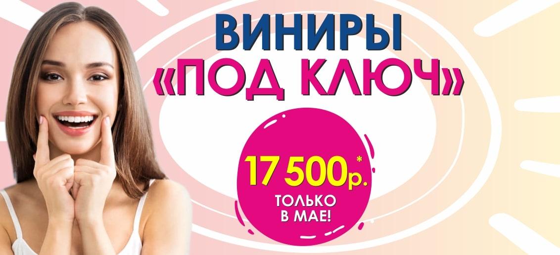 Только в мае! ФЕНОМЕНАЛЬНАЯ акция - «Виниры под ключ» всего за 17 500 рублей!