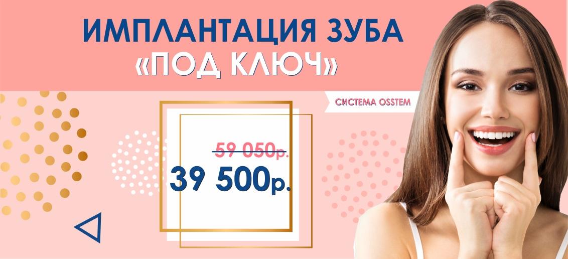 Имплантация Osstem «под ключ» всего за 39 500 рублей вместо 59 050 до конца апреля!