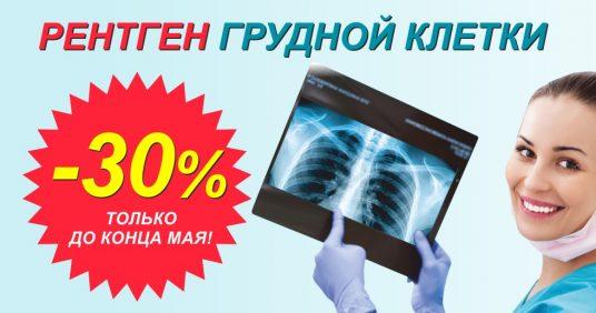 Скидка 30% на рентген грудной клетки (флюорографию) до конца мая!