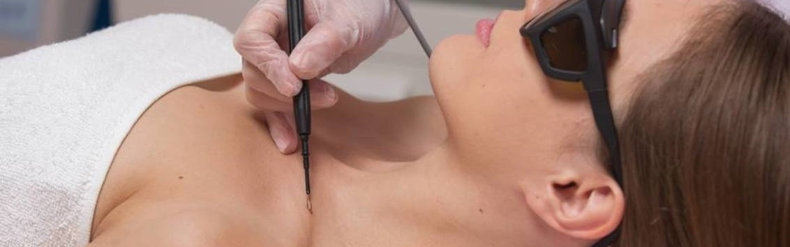 Радиоволновой метод удаления новообразований кожи